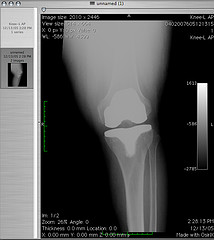image of knee replacement illustrating article on lack of benefit of glucosamine